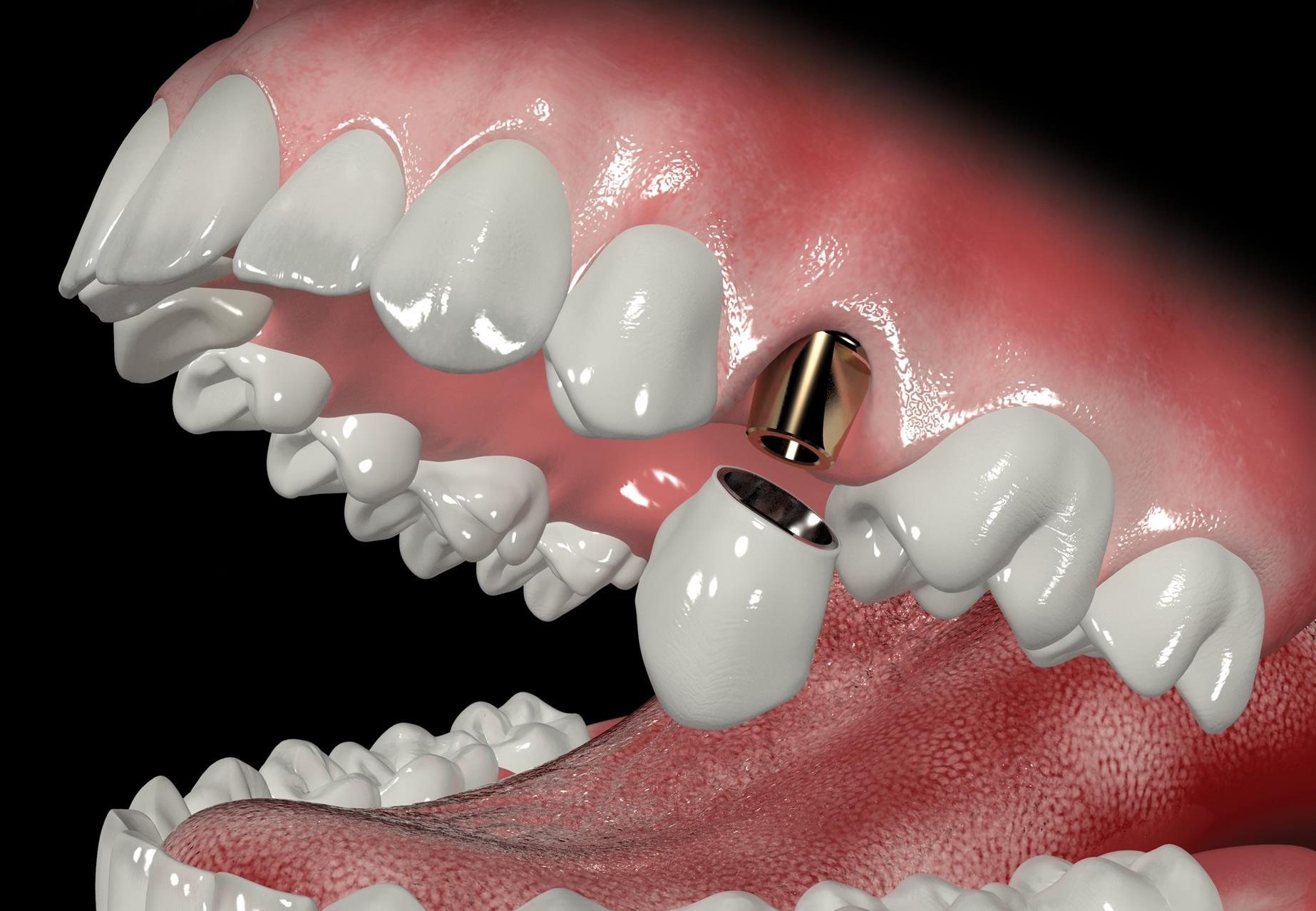 Абатмент коронка на зуб